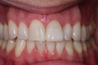 A brand new smile with just one porcelain veneer.