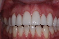 New smile with gum treatment and 10 veneers