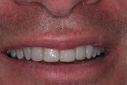 After 4 veneers and a gum treatment