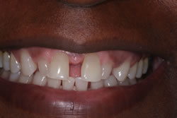 Front teeth before gum treatment and veneers