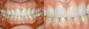 A nice white smile after veneers