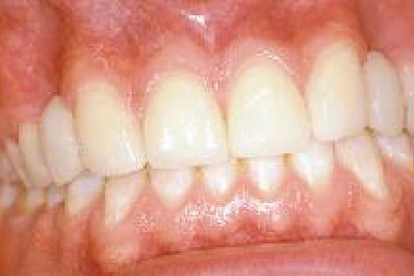 Veneers help make a whole new smile