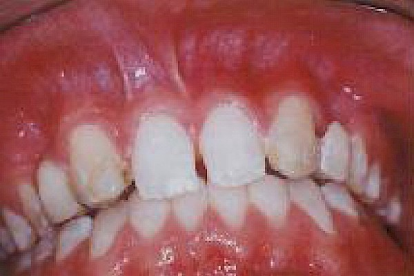 Teeth worn and discolored