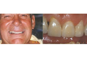 Bobby Cox after - an all new smile!