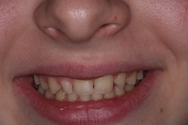Before veneers close up