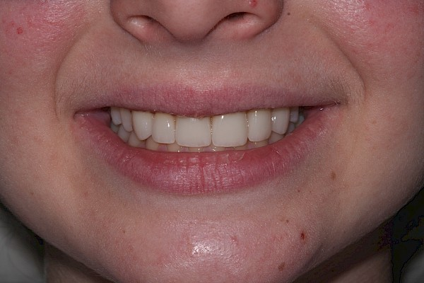 after veneers close up