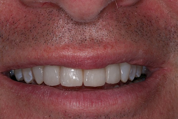 after 4 new veneers