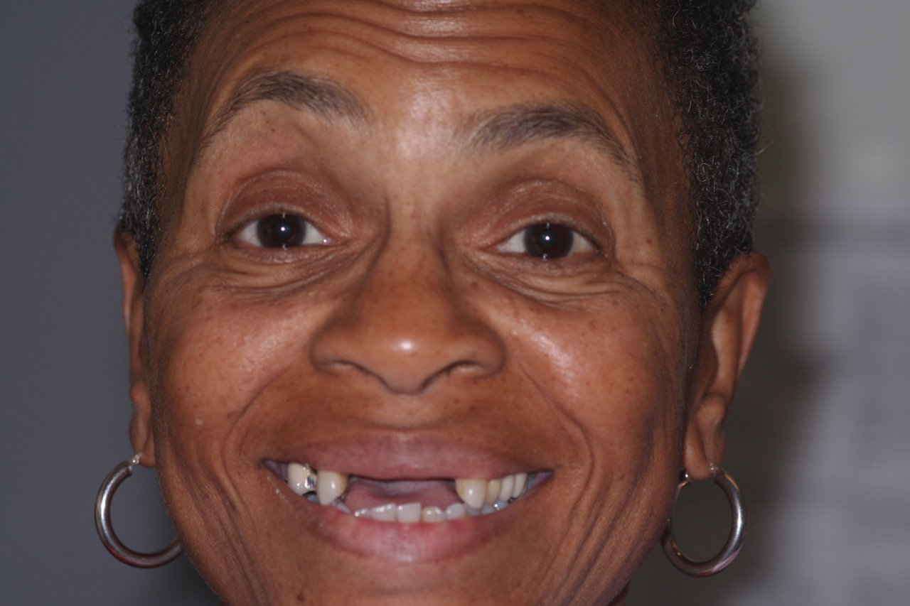 Patient needs dental implants to restore a smile!