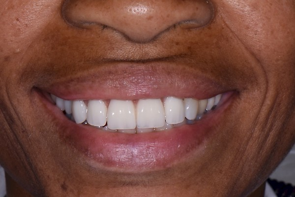Smile restored with the use of dental implants - close up!